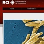 Divangahi Cell Paper Interview with Radio Canada International: Canadian researchers learn to reprogram cells to fight TB