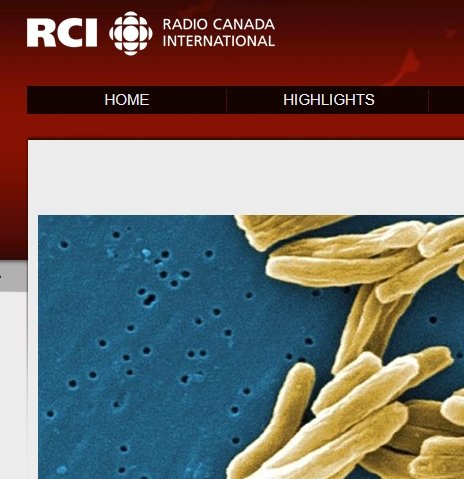 Canadian researchers learn to reprogram cells to fight TB