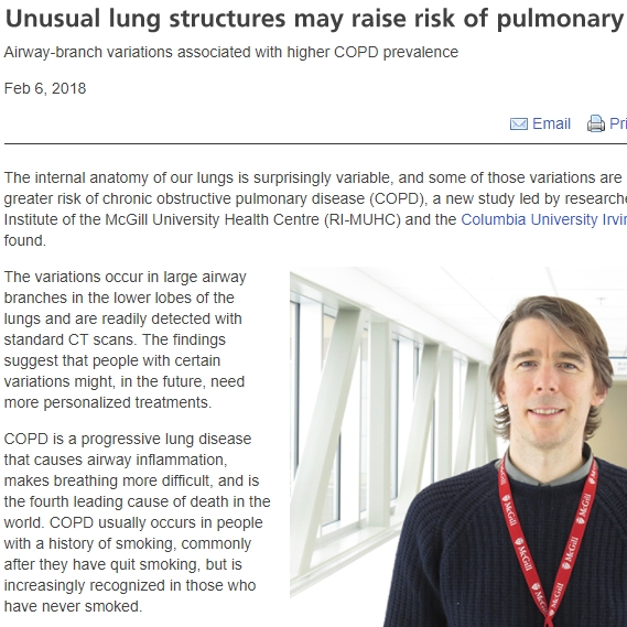 MUHC News Release for Baglole and Smith PNAS 2018 paper: Unusual lung structures may raise risk of pulmonary disease