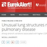 AAAS EurekAlert for Baglole Smith 2018 PNAS publication: Unusual lung structure may raise risk of pulmonary disease