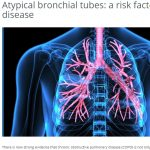 FRQS report on Baglole and Smith PNAS publication: Atypical bronchial tubes: a risk factor for lung disease