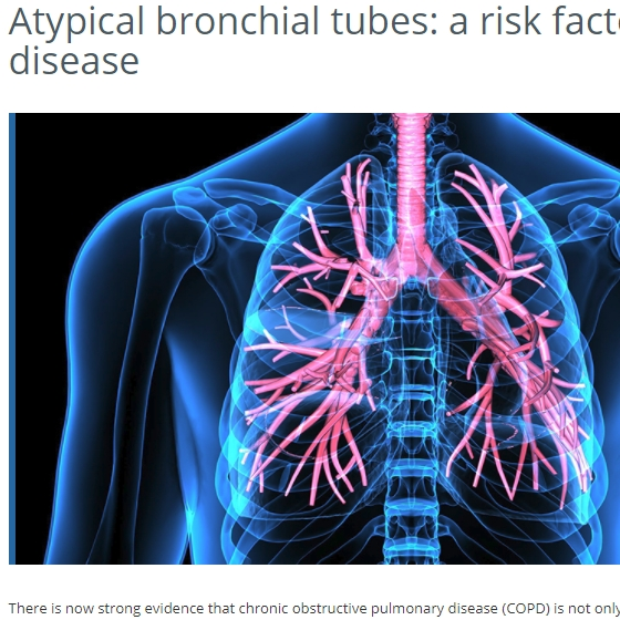FRQS news: Atypical bronchial tubes: a risk factor for lung disease