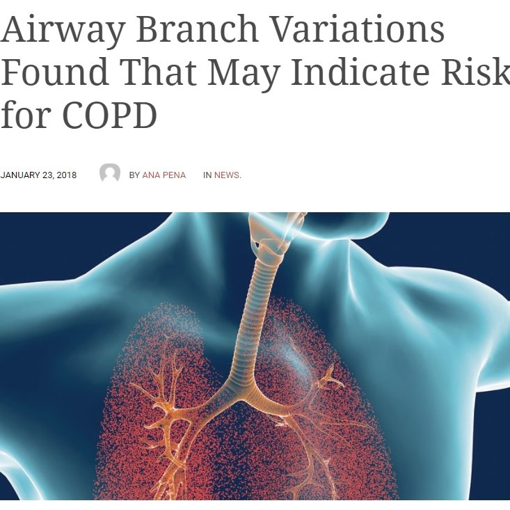 Airway Branch Variations Found That May Indicate Risk for COPD