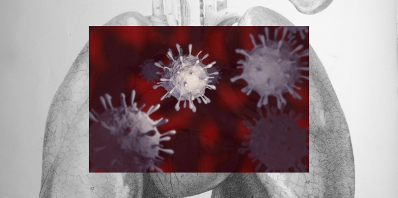 PGE2 inhibition increases survival of mice infected with H1N1 flu virus
