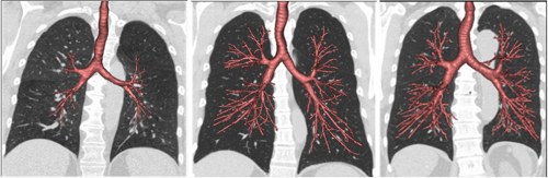 Benjamin Smith, JAMA 2020. Jun 9;323(22):2268-2280. Figure 1. These CT scans of airways (red) and lungs (dark grey) show the spectrum of dysanapsis, with smaller airways in proportion to lung size (left) compared with normal size airways (middle), and larger than normal airways (right).